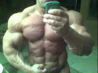 delt steroid injection sites