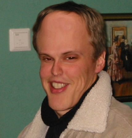 protruding forehead steroid side effect