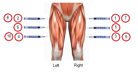 Problems, Swelling & fever!-thighs-injection-rotation.jpg