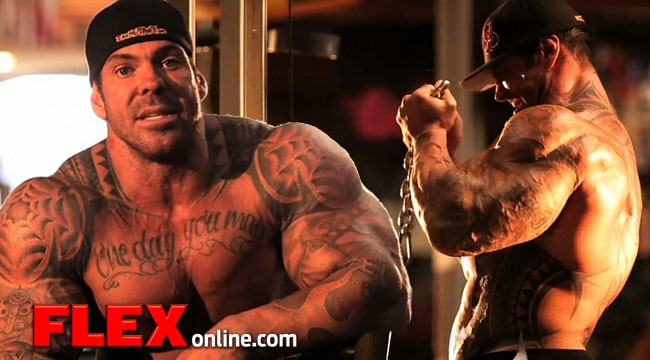 PMMA injections, the better alternative for synthol