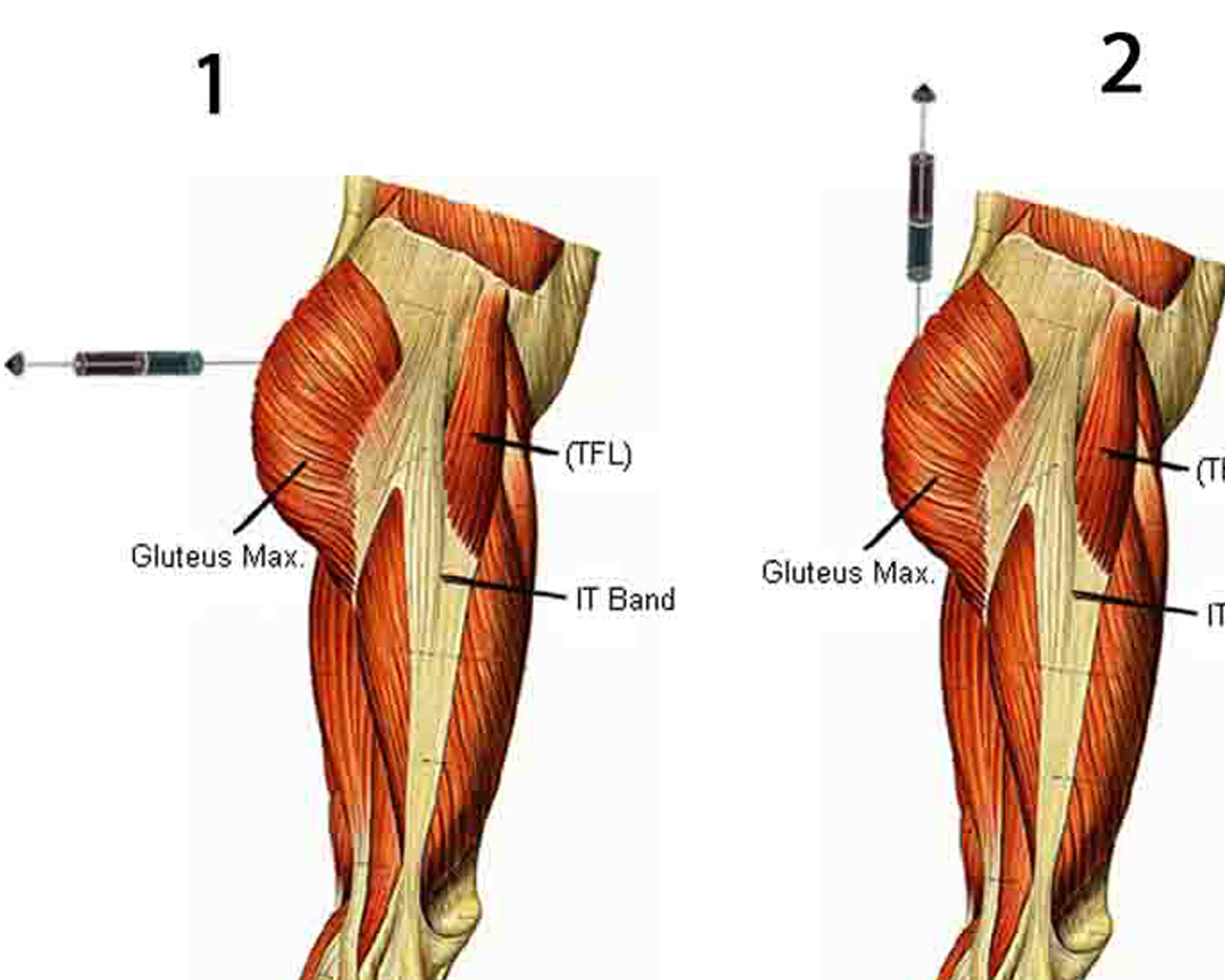 where to inject steroids into quad