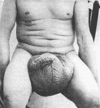 Saline Injected Penis 40