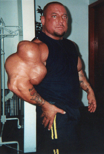 steroid bad effects