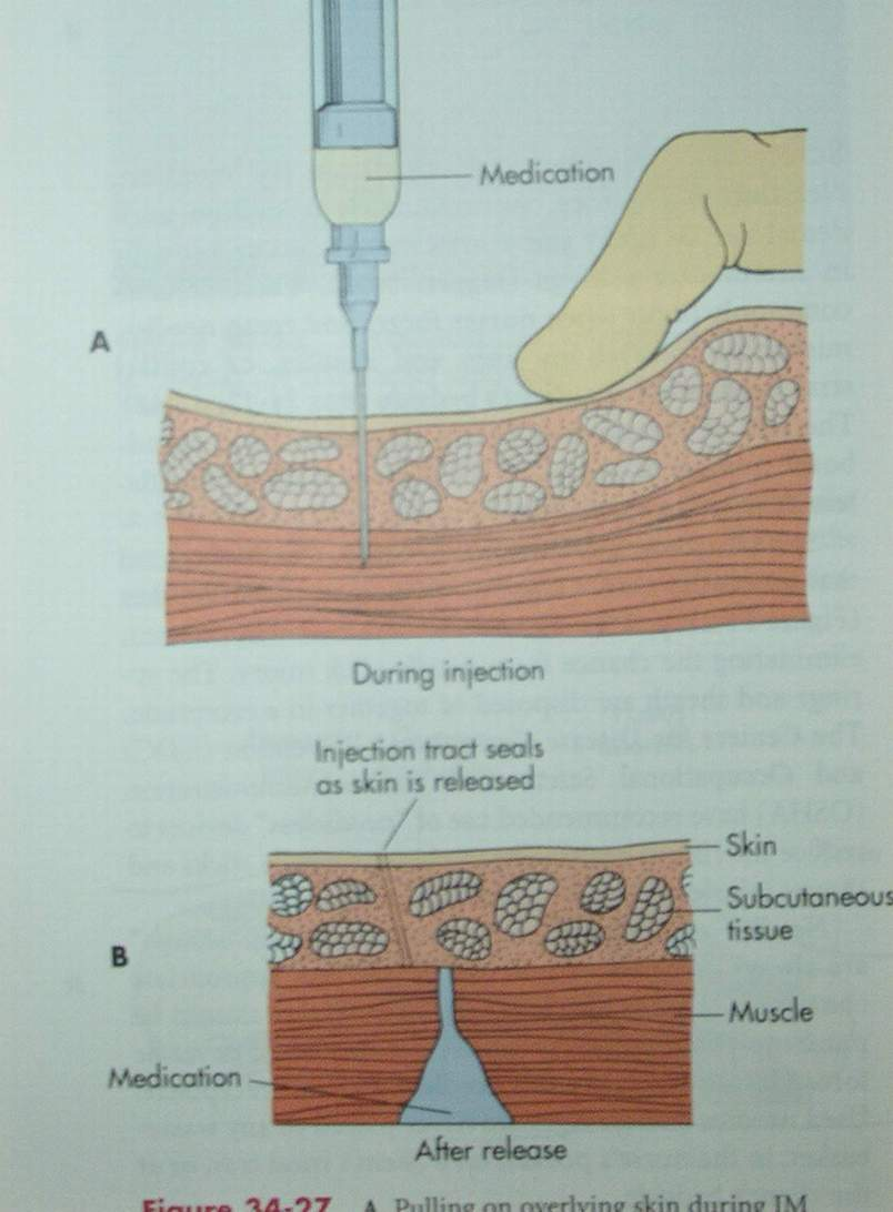 Blood/Gear leak after injection