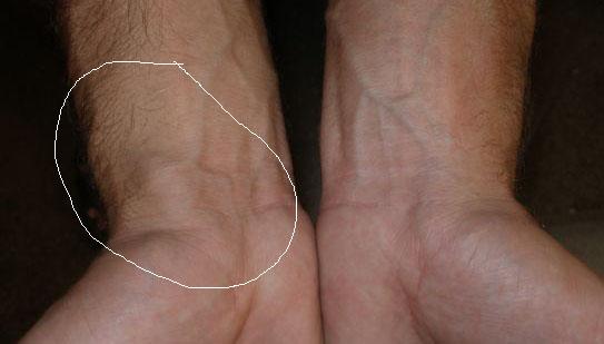 Lump on wrist-arm1.jpg