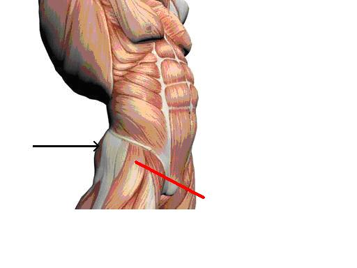 how to find the ventrogluteal injection site