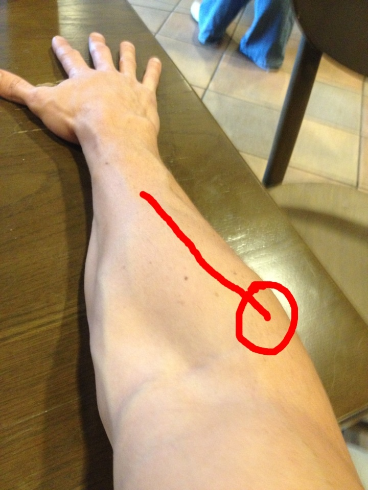 prednisone and arm pain