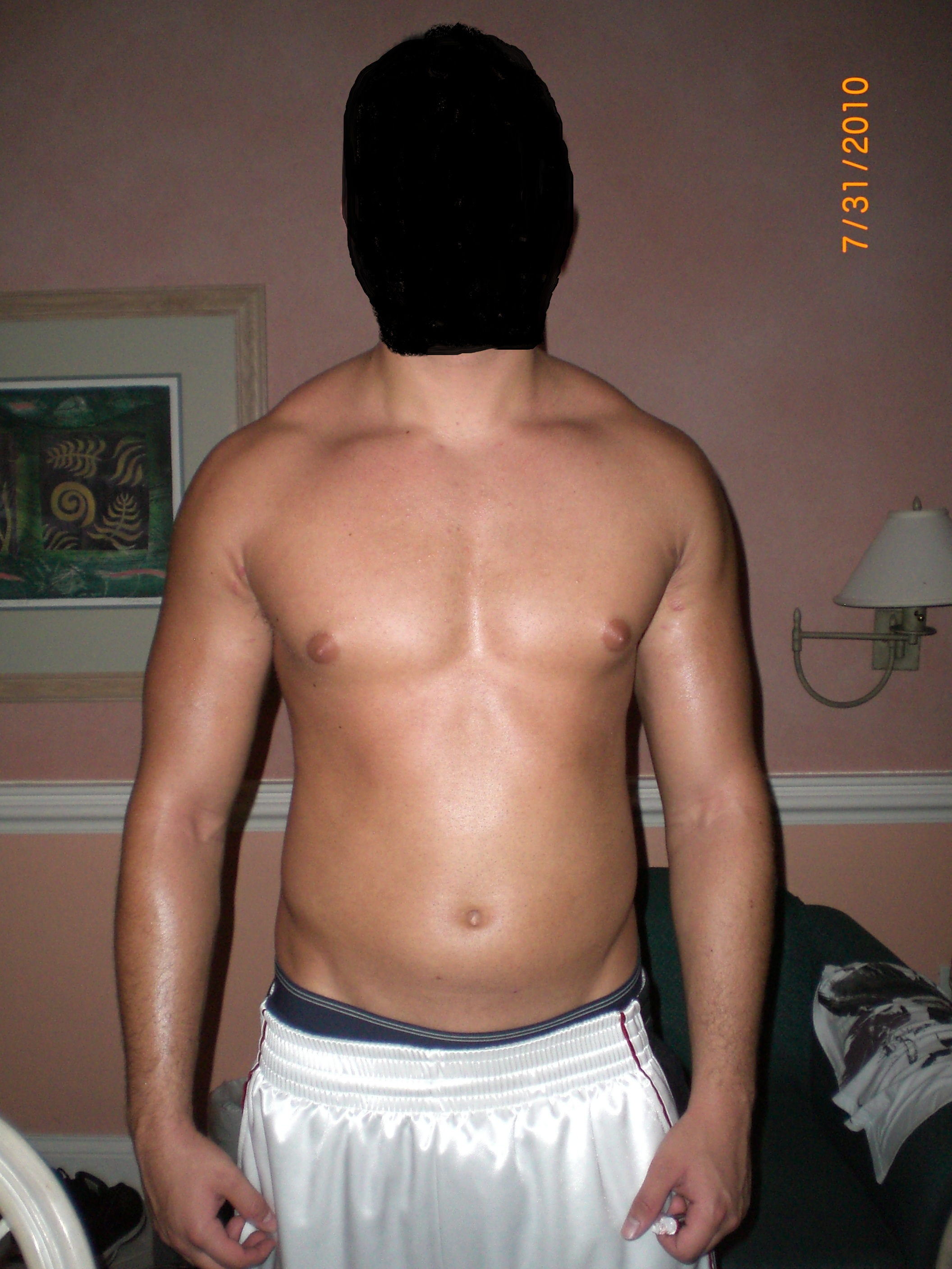steroid injection after effects
