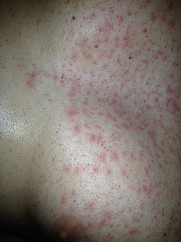 HORRIBLE FOOT RASH! (Infection?) | Dr. Paul - YouTube